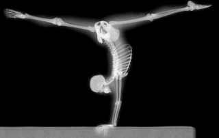 x-ray-handstand